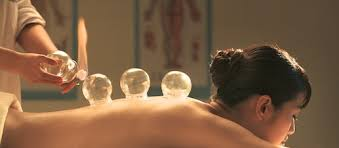 Fire Cupping - Capital Complementary Therapy Centre