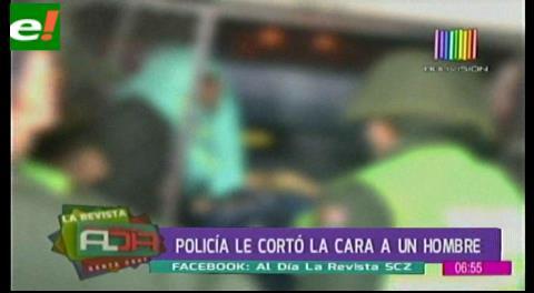Policía le cortó la cara a un hombre