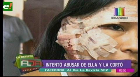 Sujeto corta la cara a una joven en plena vía pública