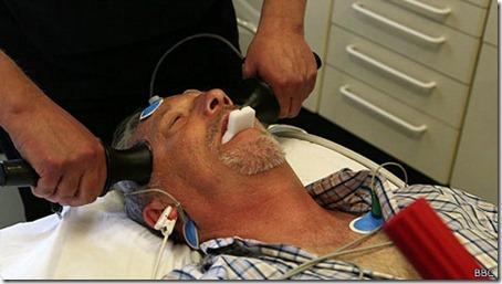 En el Reino Unido 4.000 pacientes reciben terapia electroconvulsiva anualmente.