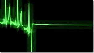 Los científicos creen que en el momento en que se para el corazón puede haber más actividad cerebra