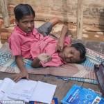 Conjoined-twins-Shivanath-Shivram-Sahu-20140411231207