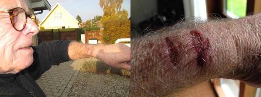 apple watch provoca quemaduras El Apple Watch produce quemaduras severas a un usuario danés