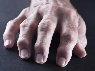 nuevo-artritis