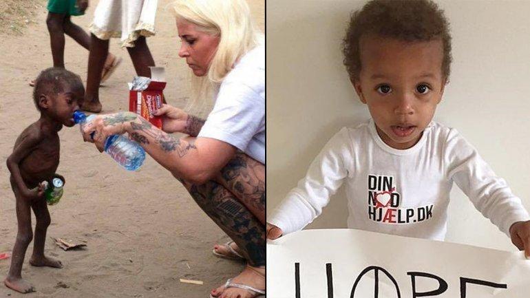 El antes y el después: la triste imagen que dio vuelta al mundo y la salud del niño en la actualidad