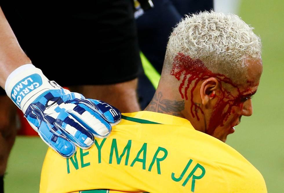 Neymar sangra tras el codazo que recibió del bolviano Duk.