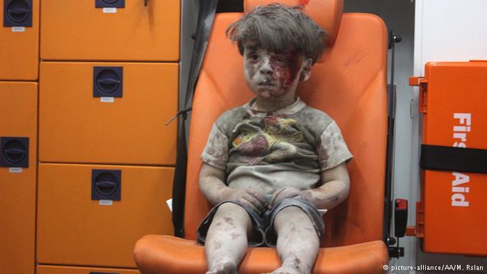 Omran Daqneesh, herido, en Alepo, Siria (picture-alliance/AA/M. Rslan).