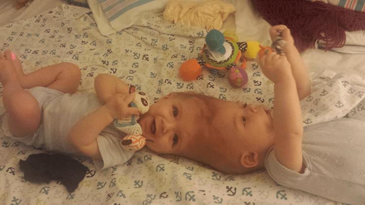 Los gemelos Jadon y Anias antes de la operación