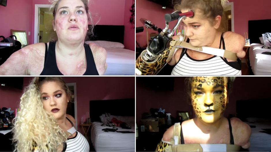Vlogger de belleza sin brazos ni piernas causasensación