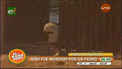 Niño de 5 años fue atacado por perros en La Cuchilla