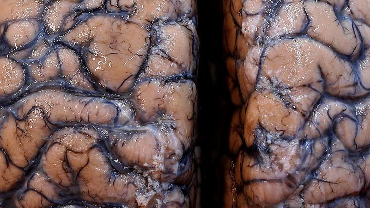 Hallan colonias de 'cerebros babosos' en una laguna citadina de Canadá (VIDEO INQUIETANTE)