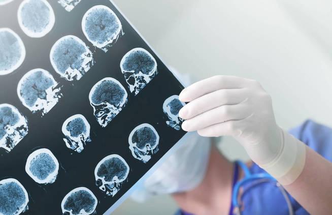 Radiografía craneal. (iStock)