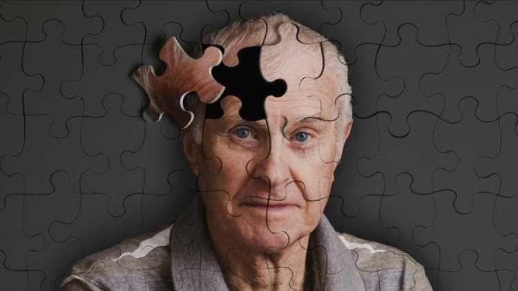 La pérdida de memoria a una edad avanzada no siempre está relacionado con el alzheimer