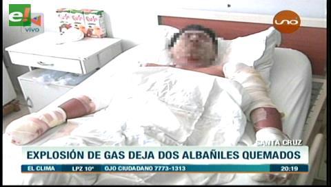 Cotoca: Albañiles se quemaron tras prender un encendedor en una cámara séptica