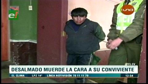 La Paz: Sujeto muerde el rostro a su pareja en un arranque de ira