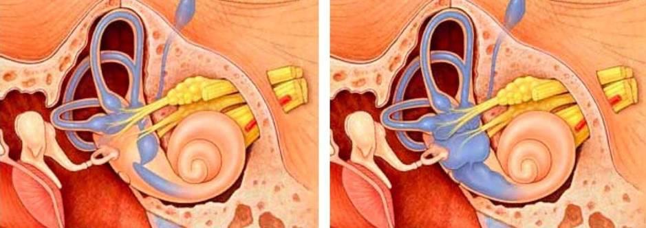 A la izquierda, un oído interno normal; a la derecha, con síndrome de Ménière. (Northwestern University)