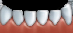 Dental bonding can be used to fix teeth that are chipped