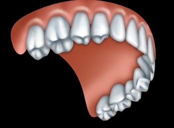 Full Upper Denture