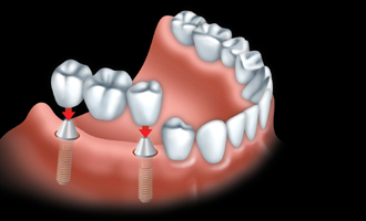 Implant 0