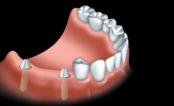 A fixed bridge is anchored to dental implants to replace one or more teeth