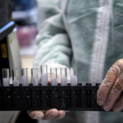 COVID-19 antibodies last at least three months