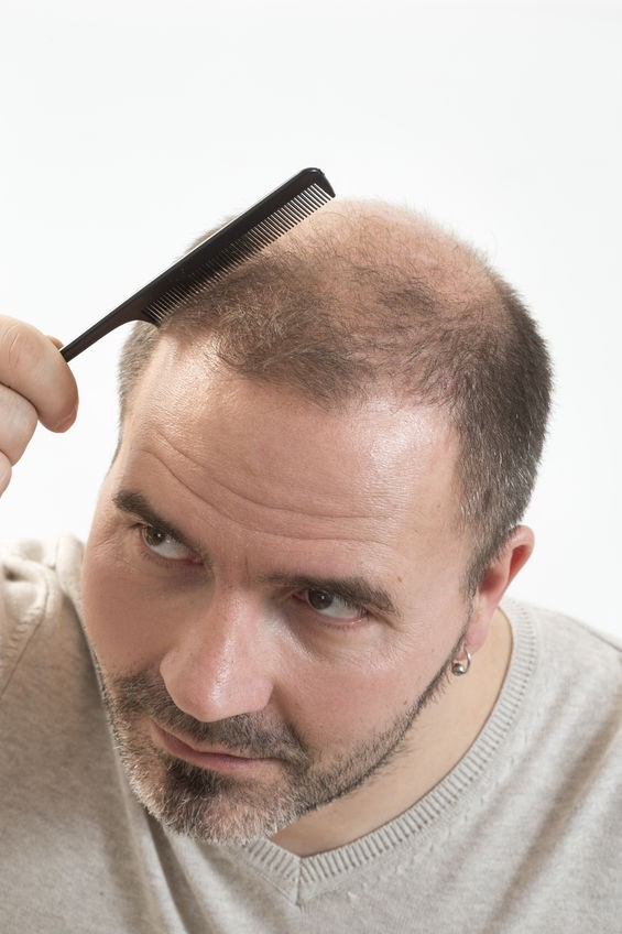 Haircuts For Men Going Bald Emma Kalman Medium