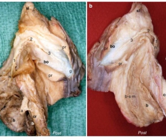 Anatomic Study Of The Clitoris And Bulbo Clitoral Organ By Di Marino And Lepidi They Describe The Anatomy In Great Detail And Display Over 100 Photos