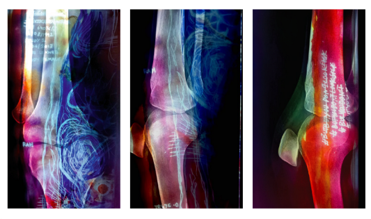 A triptych of two layers. The first, medical scans visualising blurred sections of the body. Pinks, reds, blues, yellows and purples with white handwritten words and spiralled lines form the backlit layer.