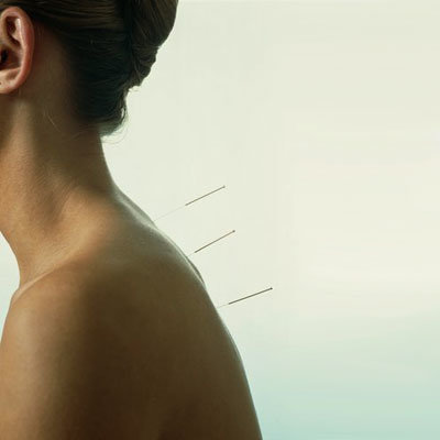 acupuncture-pain