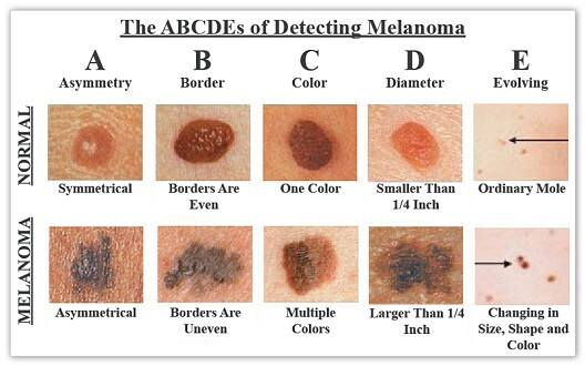 Identifying melanoma