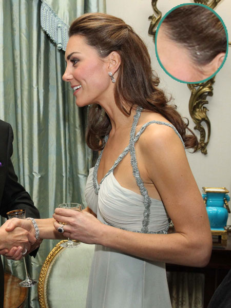 Kate Middleton Without Hair Extensions