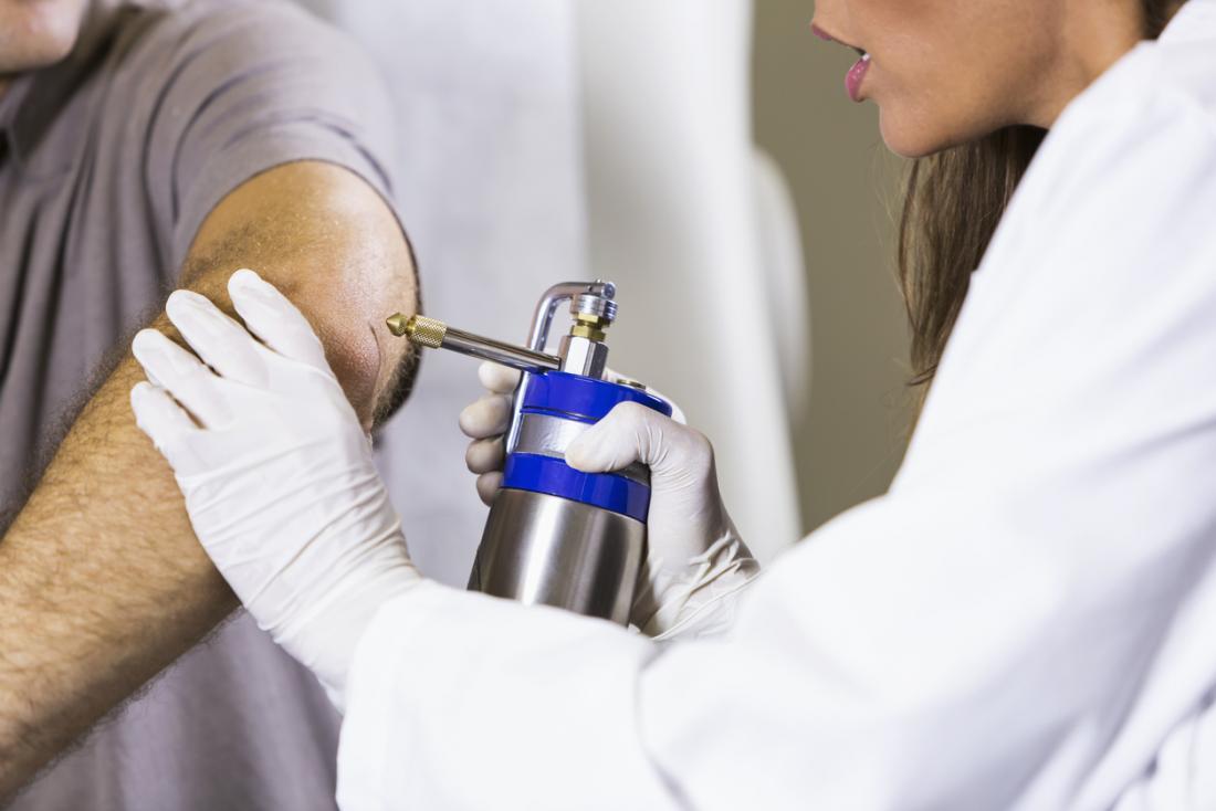 جراحة التجميد ، أو تجميد العلاج ، التي يتم إجراؤها على البثور.