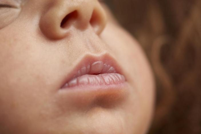 Image result for baby dry lips