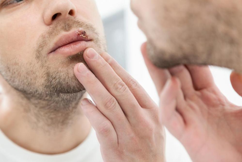 Image result wey dey for Herpes (simplex) in men?