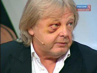 Прямой эфир Нападение на Юрия Антонова правда из первых