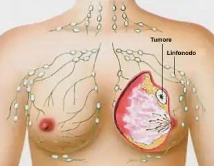 cancro al seno 4