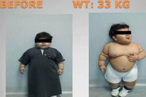 2-year-old weight loss surgery