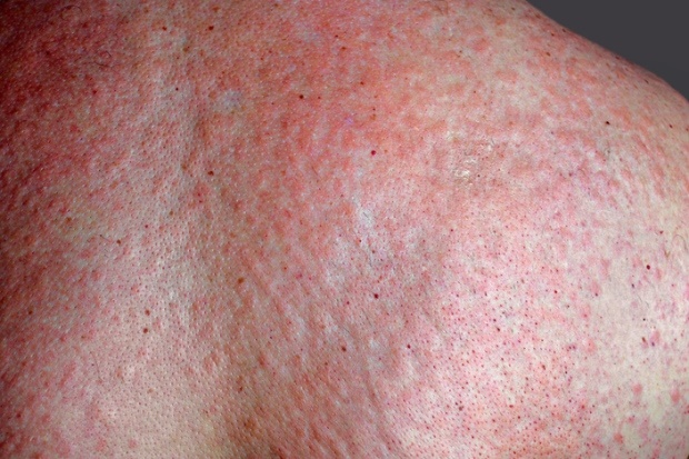 Image Result For Food Allergies Rash