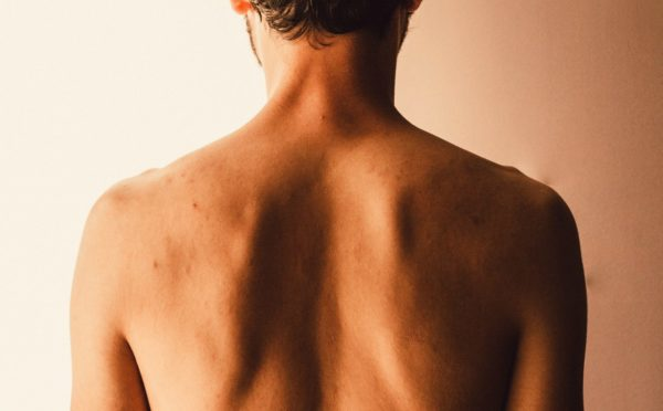 Back acne is a common problem, especially for men.