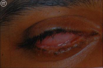 الرياض: طفل يفقد بصره نهائياً بسبب الألعاب النارية (صور)