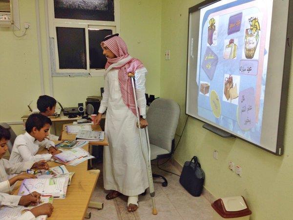 : معلم يقطع إجازته ويتحامل على كسره المضاعف من أجل طلابه