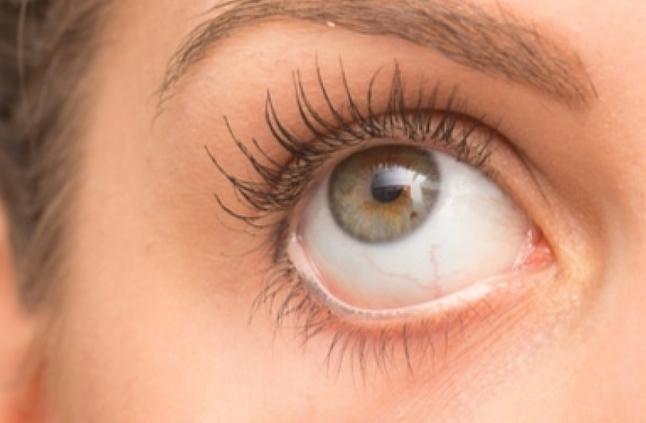 الكيس الدهني في العين الأعراض والأسباب والعلاج المرأة