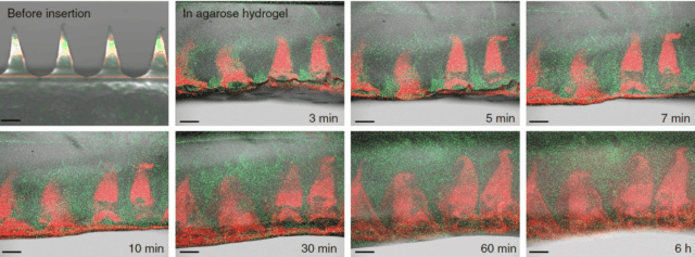 This microscopic image shows the quick release of green-dyed immunoglobulin from the HA layer and the slower release of red-dyed immunoglobulin from the MeHA layer. Scale bars = 200 µm.