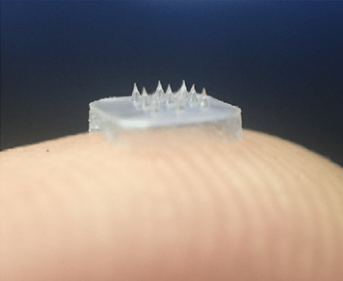 Dissolving microneedles could replace injections for chronic eye disease