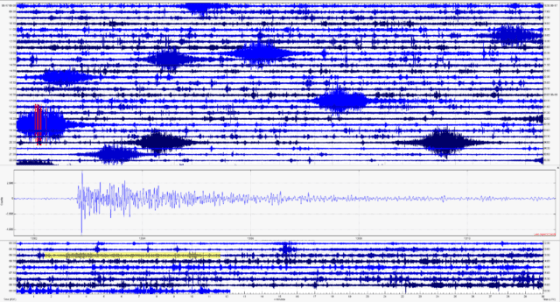Hollisters's Raspberry Shake continues to record the cigar-shaped signatures of the trains in Turlock, California, while also capturing distant earthquakes, such as this magnitude 7.4 event from New Zealand on June 18, 2020. The New Zealand earthquake is highlighted in yellow in the background and increased in the bet.