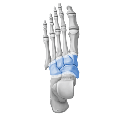 Mid Foot Arthritis