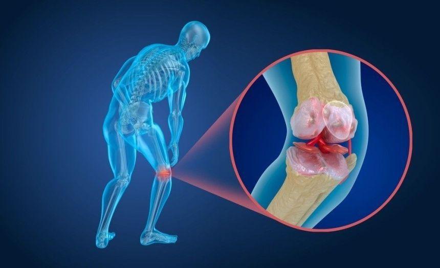 cartilagini dell'anca e del ginocchio