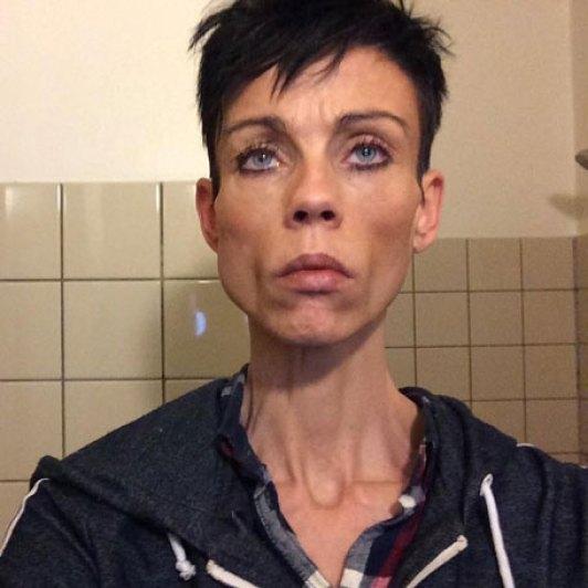 Et råb om hjælp - Anne har en spiseforstyrrelse