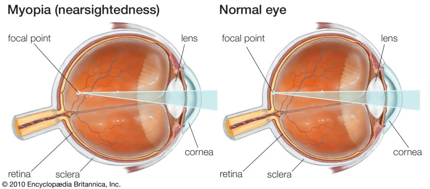 Myopic eye versus normal eye