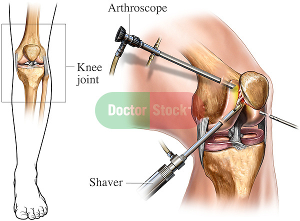 </h4> <p>arthroscopic knee surgery